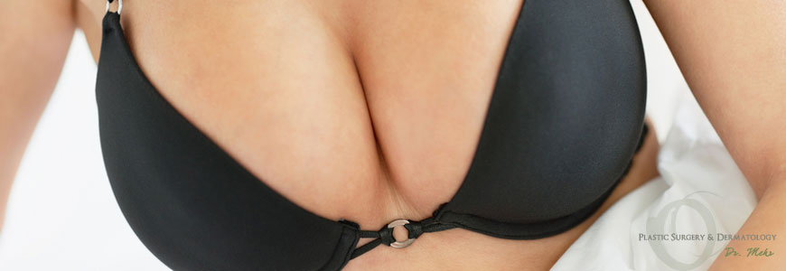 breast_augmentation_beverly_hills